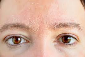 درمان خشکی پوست