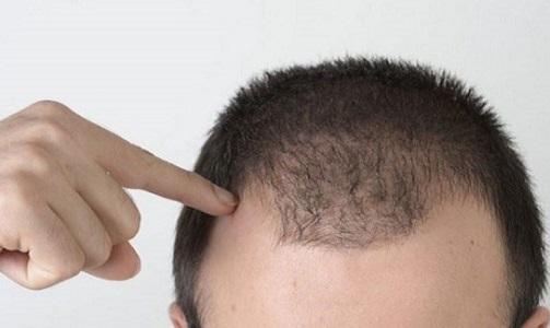همه چیز هایی که باید درباره کاشت مو بدانید