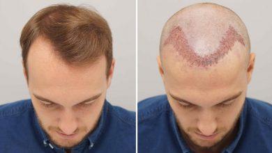 Photo of روش های کاشت مو چیست و بهترین روش کدام است؟