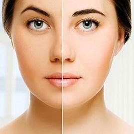 روشن سازی رنگ پوست