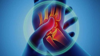 Photo of روماتیسم مفصلی یا آرتریت روماتوئید چیست و چه علائمی دارد؟