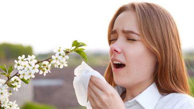 Photo of بررسی آلرژی ها و حساسیت های شایع در فصل تابستان و نحوه درمان آن ها