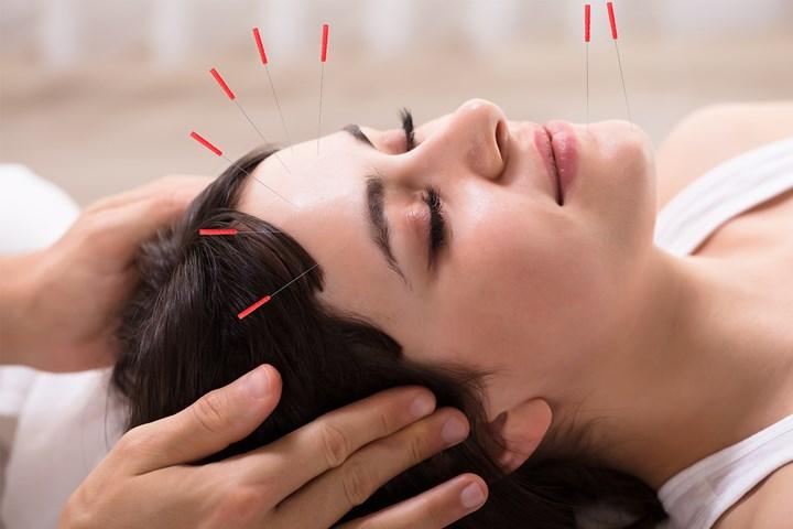 انجام طب سوزنی برای درمان سردرد