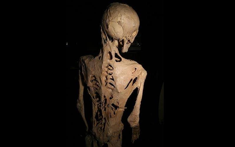 بیمار مبتلا به بیماری فیبرو دیسپلیسیا
