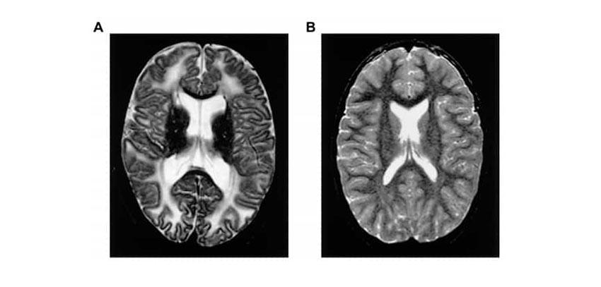عکس رادیولوژی بیمار مبتلا به کمبود RPI