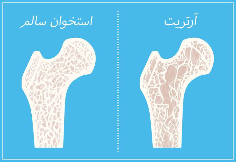 آرتریت و پوکی استخوان