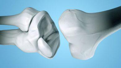 Photo of آنچه زنان مبتلا به آرتریت باید درباره پوکی استخوان بدانند