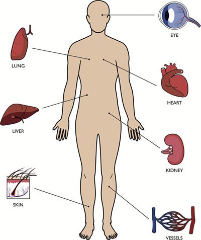 علائم دیابت چیست؟ آثار مخربی که دیابت در اندام های انسان دارد