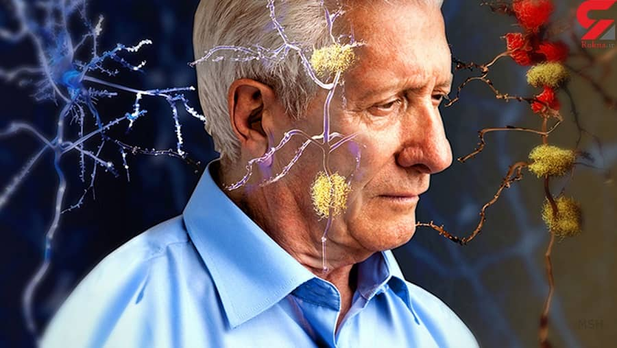 نقش ارث بری در ابتلا به آلزایمر
