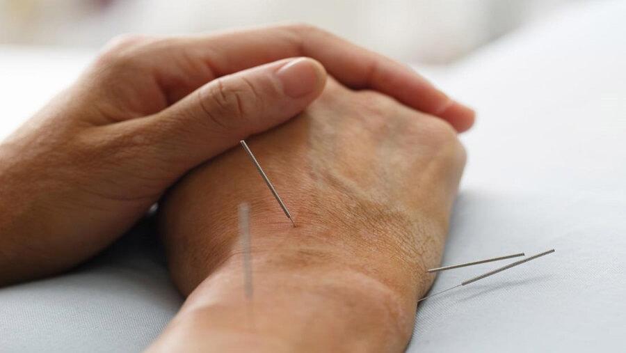 دستورالعمل طب سوزنی