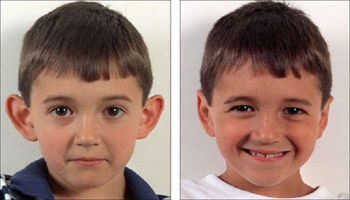 حداقل سن برای جراحی اتو پلاستی 5 سال می باشد.