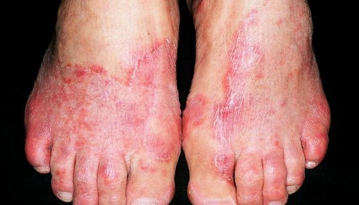 عفونت های قارچی پوست (قارچ پای ورزش کار)