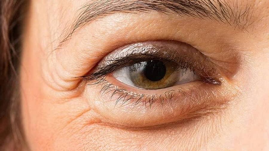 بهبود ضعیفی چشم