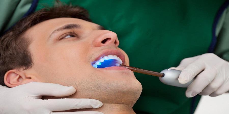 چه زمانی باید برای آبسه دندان به پزشک مراجعه کرد؟