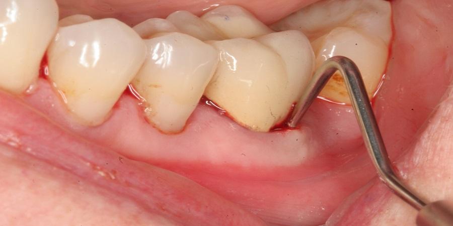 این نوع از آبسه بروی لثه افراد و در کنار ریشه دندان بروز می کند.