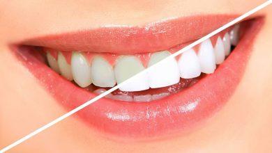 Photo of راهکار های طبیعی برای سفیدی دندان : دندان های خود را برق بیاندازید!
