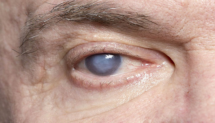 عوارض قطره های چشمی کورتیکواستروئید باعث ایجاد آب مروارید می شود.