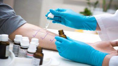 Photo of روش های تشخیص حساسیت و آلرژی، از کجا بفهمیم حساسیت داریم؟