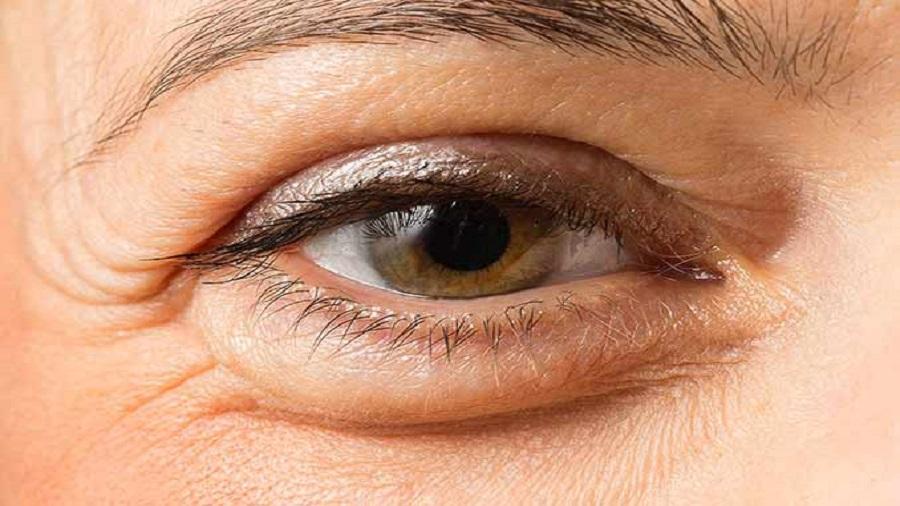 درمان پلک متورم