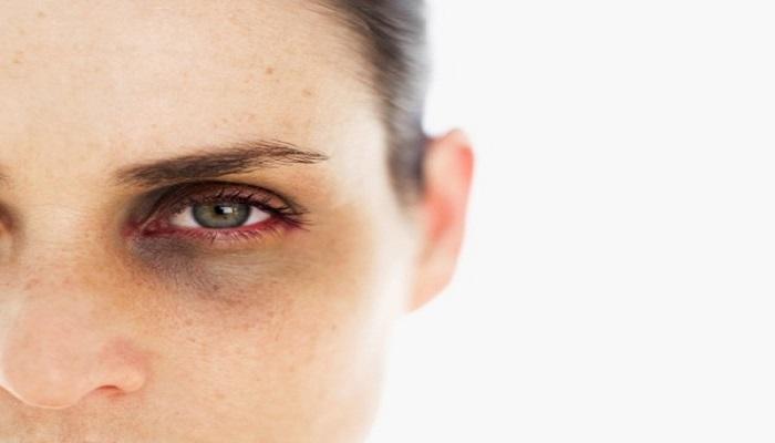 آسیب دیدگی نیز باعث تورم پلک می شود.