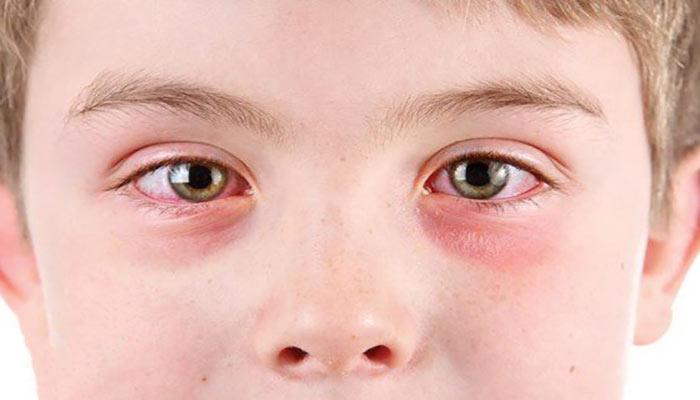 تحریک و قرمزی چشم با مصرف داروهای بیولوژیکی