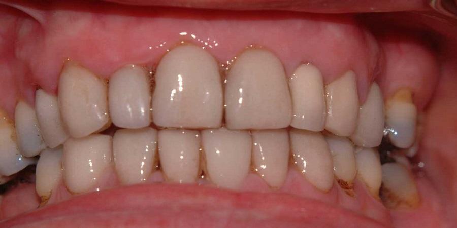 معایب لمینیت دندان