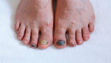 Photo of افتادن ناخن پا چه دلایلی دارد و راه های پیشگیری از آن چیست؟