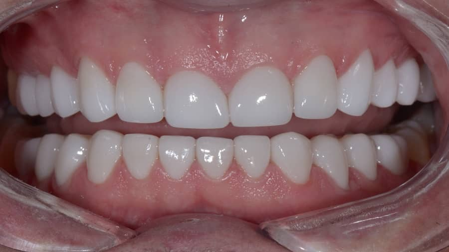 لمینیت دندان چیست و چه کاربردی دارد؟
