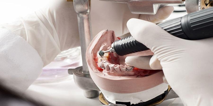 مدل ها به آزمایشگاه دندانپزشکی ارسال می شوند
