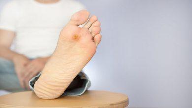 Photo of زخم های ناشی از دیابت را چگونه درمان کنیم؟
