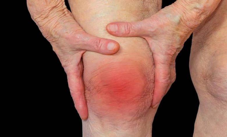Photo of موثر ترین روش های درمانی برای درمان آرتروز زانو