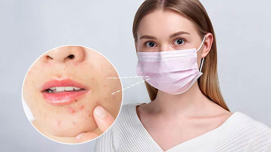 عوارض پوستی استفاده از ماسک + راه های پیشگیری