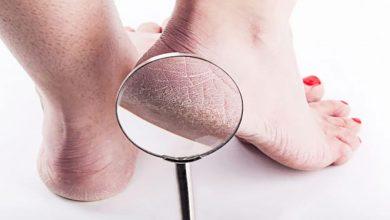 Photo of دلایل ایجاد ترک پاشنه پا + راه های پیشگیری و درمان آن