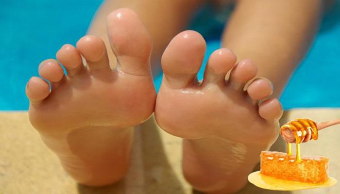 از ماسک عسل برای درمان ترک پاشنه پا استفاده کنید.