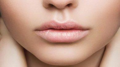 Photo of 6 درمان خانگی برای درمان لکه سفید روی لب (لکه های فوردایس)