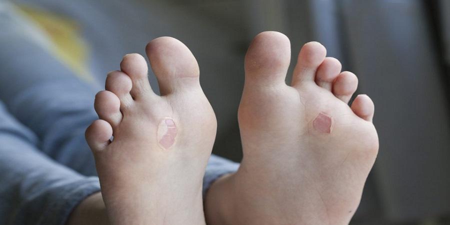 درمان خانگی تاول با ویتامین E