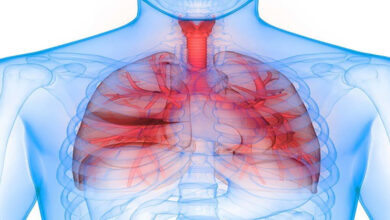 بیماری COPD.