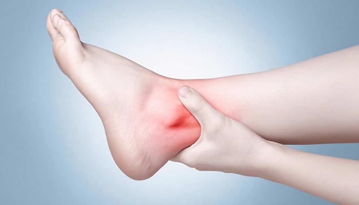 پیچ خوردگی مچ پا در اثر پوشیدن کفش های پاشنه بلند.