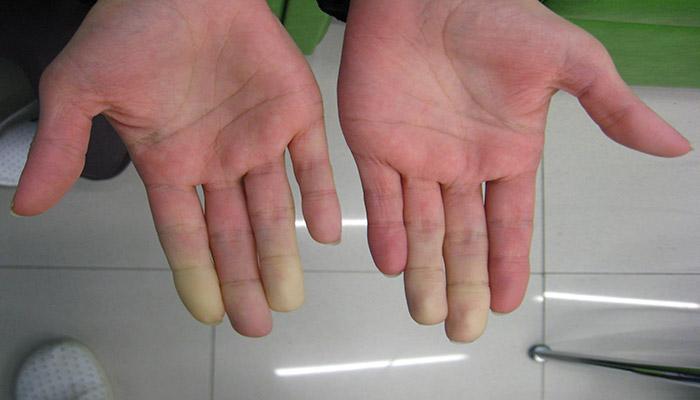 در واکنش به سرما یا استرس، رنگ پوست تغییر می کند.
