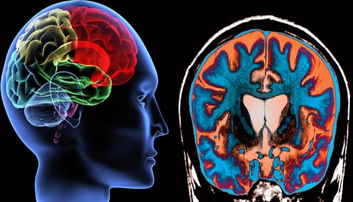 التهاب مغز یا نخاع در اثر انتقال بیماری با پشه.