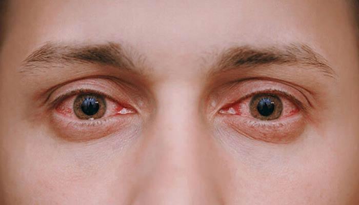 قرمزی چشم.
