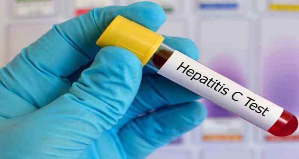 آزمایش تشخیص بیماری هپاتیت C