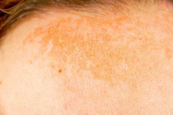 دلایل تیره شدن پوست