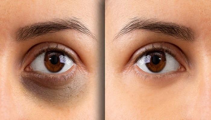 رفع سیاهی دور چشم.