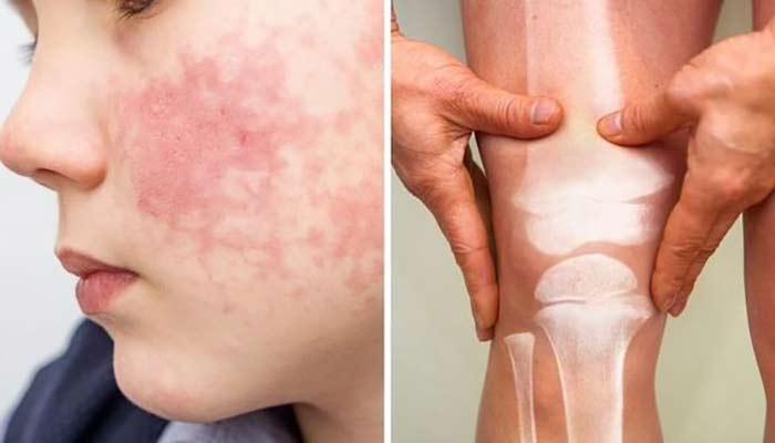 درد مفاصل و بثورات پوستی