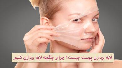 لایه برداری پوست