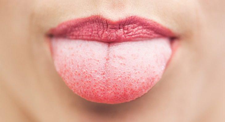 روش های موثر برای تسکین و درمان سوختگی زبان.