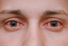 درمان چشم صورتی دوران بارداری