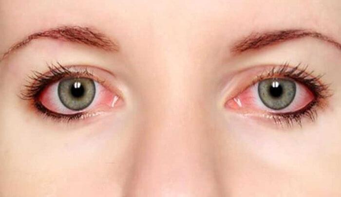 قرمزی چشم و بیماری CVS